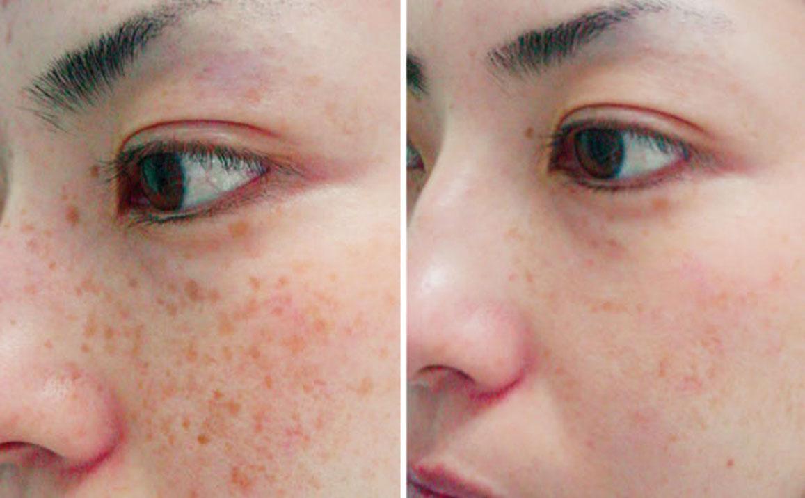 Kết quả trị thâm do tăng sắc tố melanin bằng megaduo sau 3 tháng
