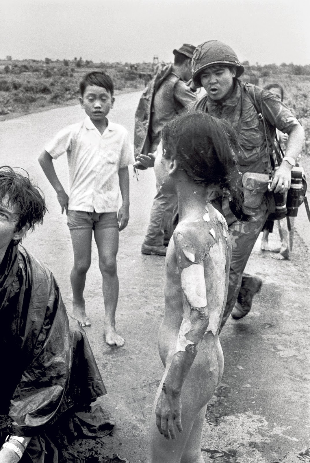 The photo clearly shows the severe burns to the back and arms that Kim Phuc sustained during that conscious napalm bombardment and of which she still bears the scars today.