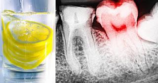 هام : طبيب الأسنان يحذر الأشخاص الذين يحبون شرب ماء الليمون !!!!