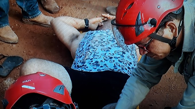 Acidente  envolvendo carro e moto deixa uma pessoa com fratura exposta na rodovia transamazônica em Itaituba.