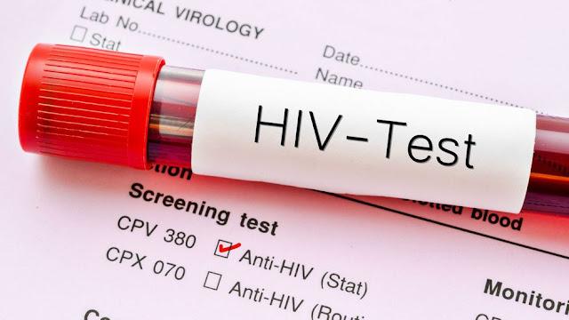 10 Daftar Nama Penyakit yang Disebabkan Virus dan Banyak Dialami