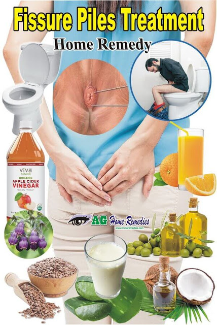 Fissure Piles Treatment Home Remedy