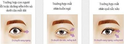 Bị cận thị có cắt mí mắt được không