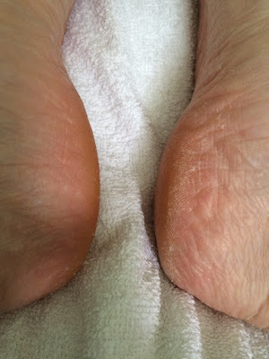 Before and after feet picture