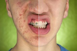 Las astuces les plus efficaces pour lutter contre l'acné et les boutons