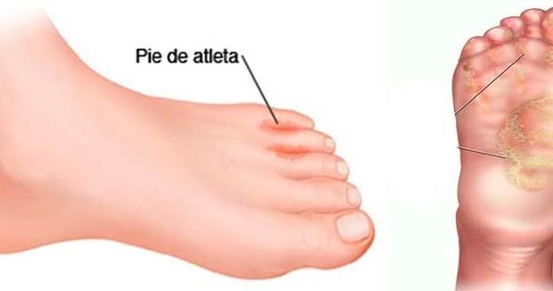 Como sanar el hongo de las uñas en los pies la diabetes