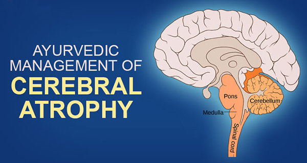 Ayurvedic management of cerebral atrophy