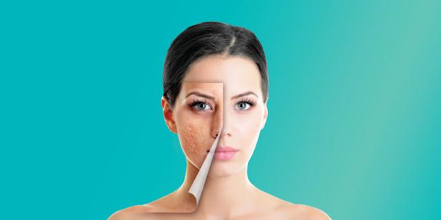 remove acne