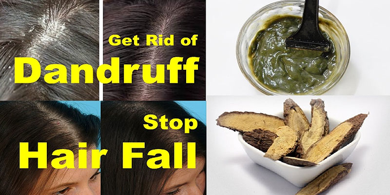 Stop Hair Loss With This Ingredient 100 Work Get Rid Of Dandruff And Hair Loss Treatment The Stylish Life