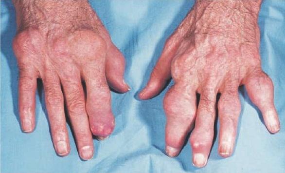 Rawatan Mujarab penyakit Gout Kronik Cara Semulajadi