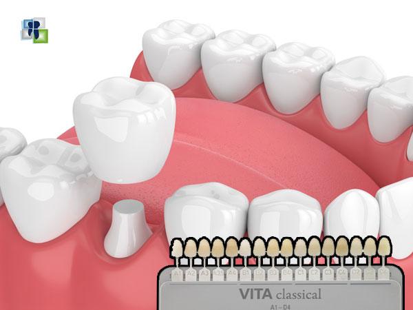 اختيار لون التيجان والجسور في الأسنان