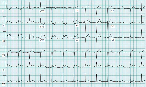 Acute Type A Aortic Dissection ECG