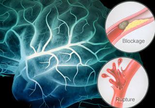 stroke obat penyakit