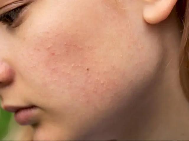 Cara Menghilangkan Rasa Gatal Di Wajah