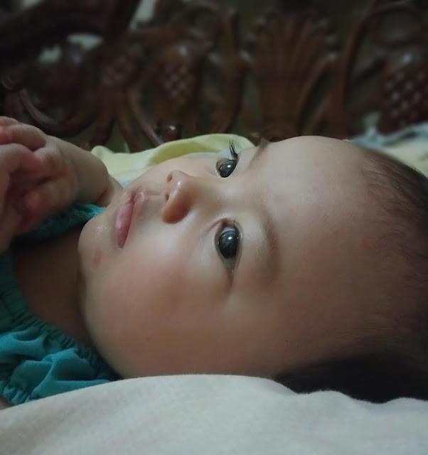 ruam pada bayi setelah demam