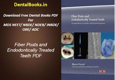 Fiber Posts and Endodontically Treated Teeth PDF