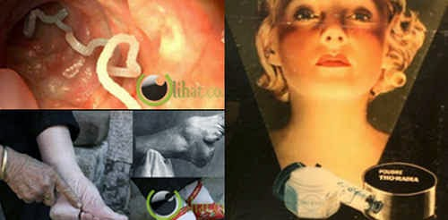8 Wanita yang Rela Merusak Organ, Makan Cacing demi Cantik