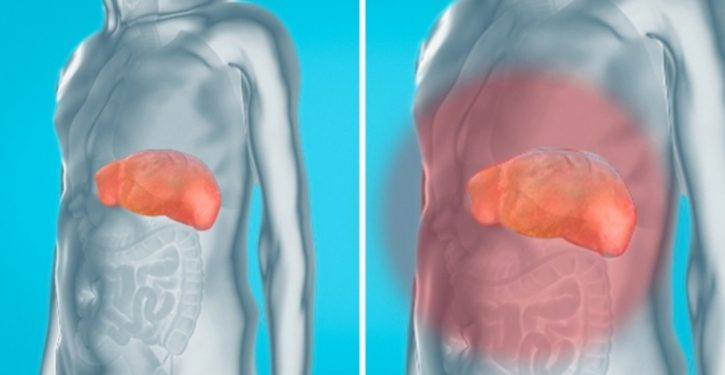 How To Remove Toxins From Kidneys, Liver And Bladder Naturally