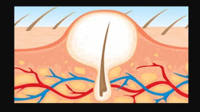 ازالة الشعر تحت الجلد بالحلاوة