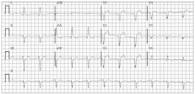 LBBB with evolving MI