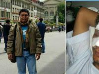 "Hina Anies Baswedan, Dedengkot Ahoker Ketakutan Teringat Saat Wajahnya Bonyok ""Digempor"""