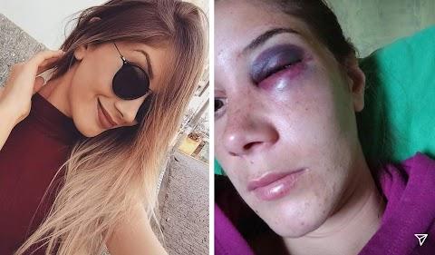 Jovem é brutalmente espancada na cidade de Cristina, MG