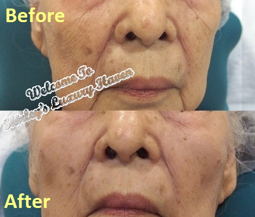 eha clinic restylane fillers cheek before after