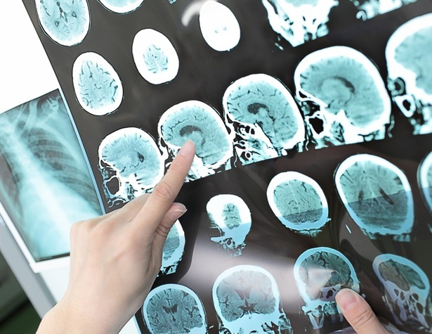 Nuovo farmaco aiuta a preservare le cellule cerebrali per un po 'di tempo dopo l'ictus