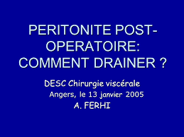 PERITONITE POST-OPERATOIRE: COMMENT DRAINER ? .pdf