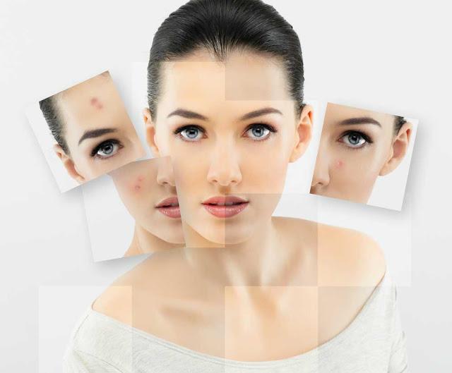 6 Jenis Jerawat Kulit Wajah Dan Cara Mengatasinya