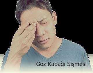 Göz Kapağı Şişmesi Nedenleri
