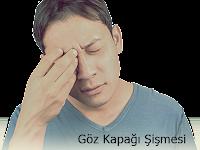Göz Kapağı Şişmesi Nedenleri ve Tedavisi