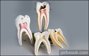 افضل دكتور جذور اسنان في جدة