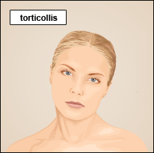 herbal remedies for torticollis