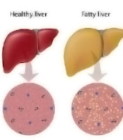 inflammation of the liver is called Hepatitis