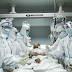 A 65-Year-Old Patient With Covid-19 Survived A Lung Transplant