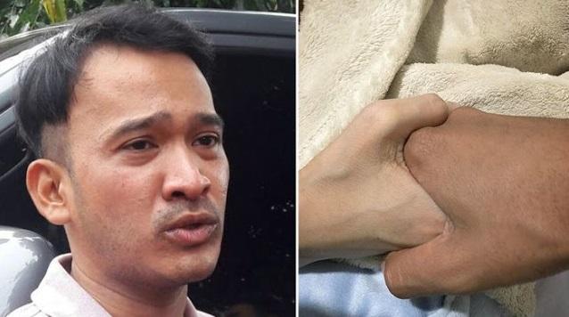 Usai Cuci Darah, Julia Perez Sudah Beri Respon dengan Menggenggam Erat Tangan Ruben Onsu, Dan Berpesan Kepada Ruben..Jupe : Tolong..?
