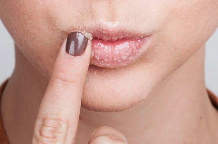 Image result for bibir dan gula perang