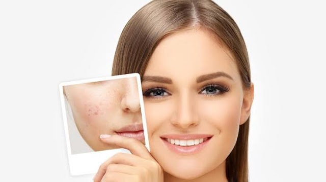 Why Laser Resurfacing In PunjabAre Highly Beneficial One?