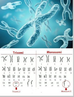 gangguan kromosom
