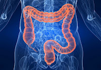 Bahaya Usus Penuh Racun atasi Dengan Detox FiforLif