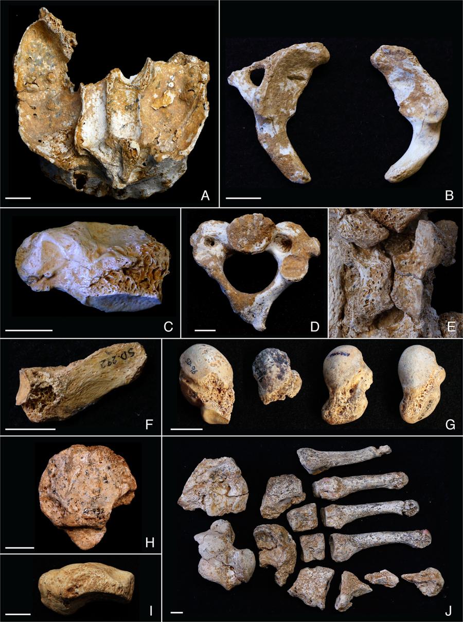 Huesos con anomalías congénitas en el grupo familiar del Sidrón (Asturias). Foto: Ríos et alii, Nature Scientific Reports.
