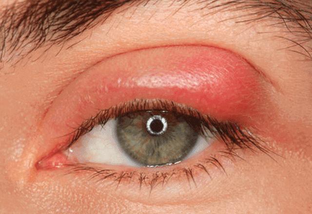 كيف يتم علاج التهاب جفن العين