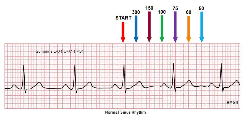 Can not heart rate on ekg strip consider, that