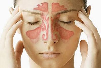 Cara mengobati hidung tersumbat dengan refleksi