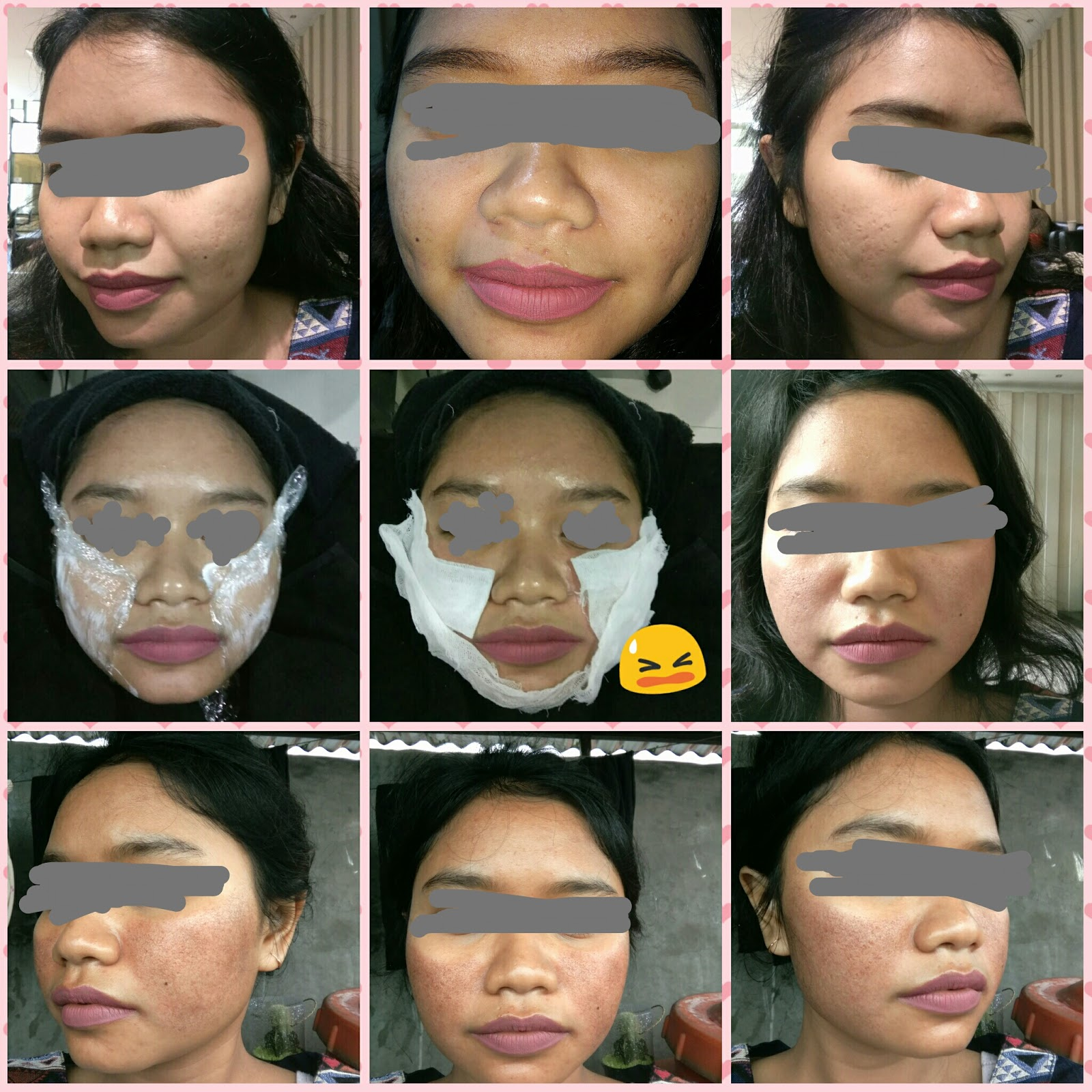 Harga Perawatan Laser Pigmen Di Natasha Skin Care