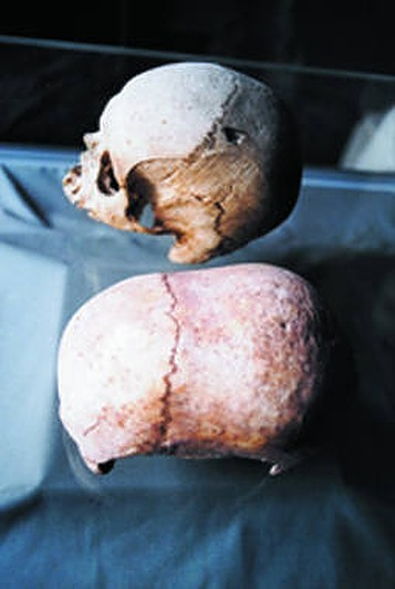 'Abnormally shaped' skulls from ancient hypogeum in Malta to be studied