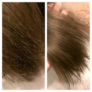 علاج الشعر الجاف والتالف