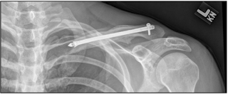 internal fixation clavicle fracture- by www.physioscare.com