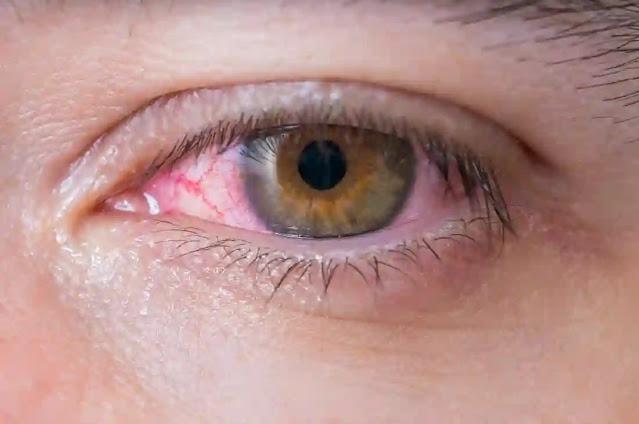 علاج الم العين بالعلاجات المنزلية الحريف